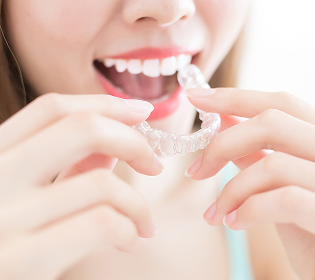 Colleyville Alternative to Braces for Teens