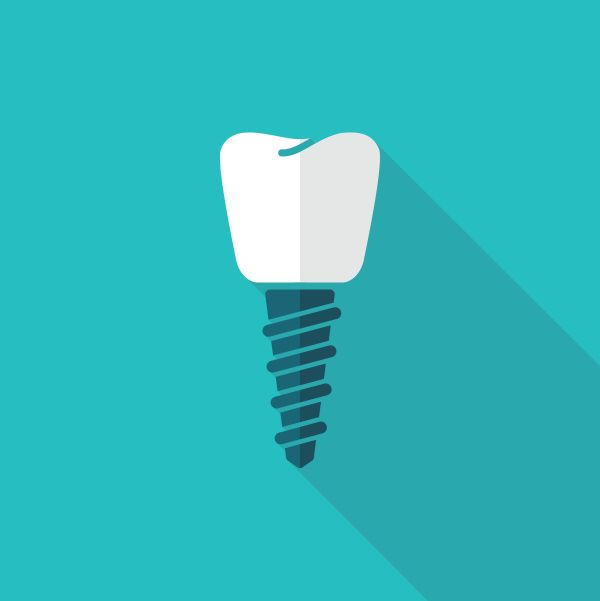 Situations To Consider Getting Dental Implants