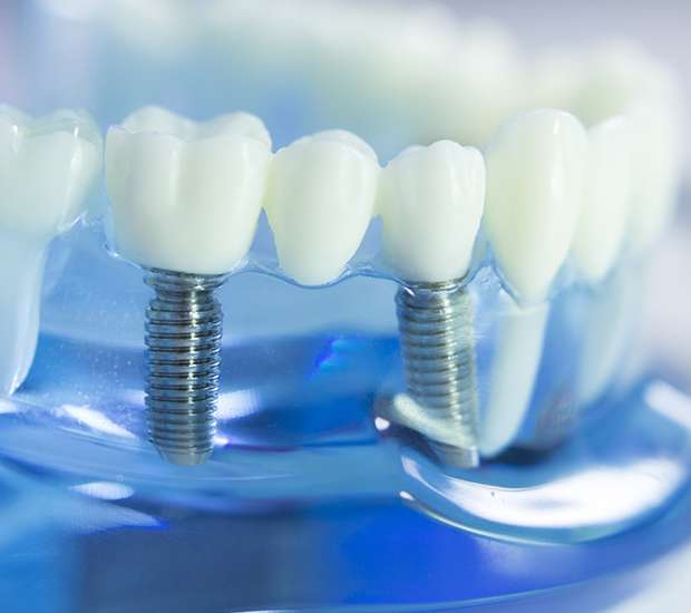 Colleyville Dental Implants